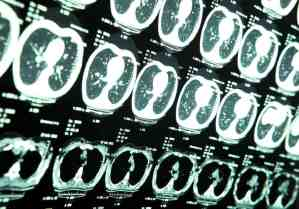 Traumatic Brain Injury (TBI) Stats from the CDC