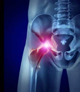 Zimmer Hip Replacement