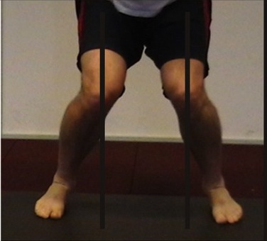 Knee-valgus-front-view