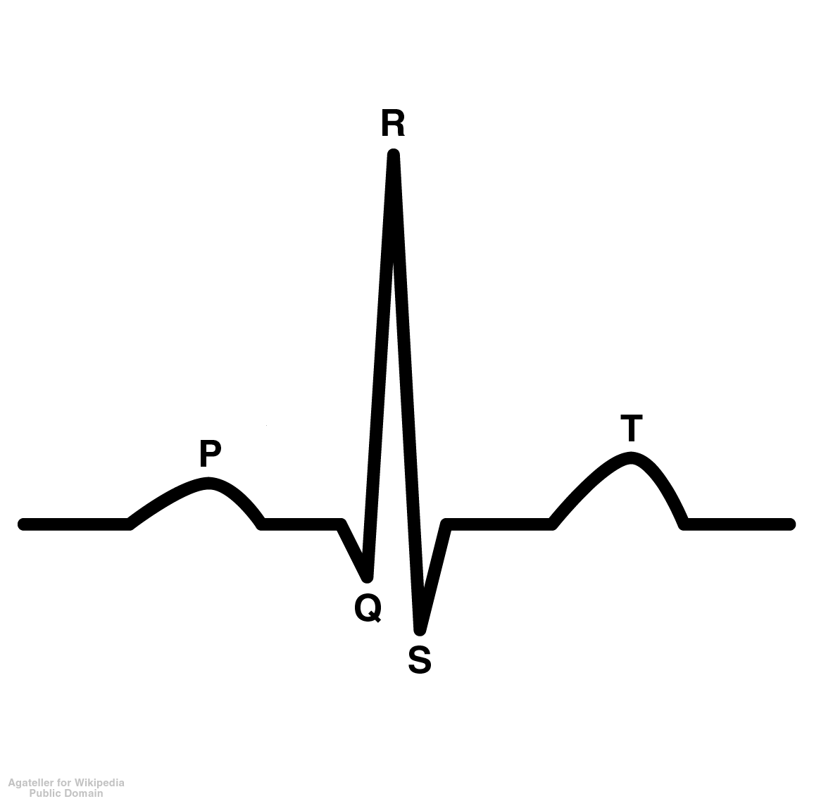 The Ecg Made Even Easier Nursediaries