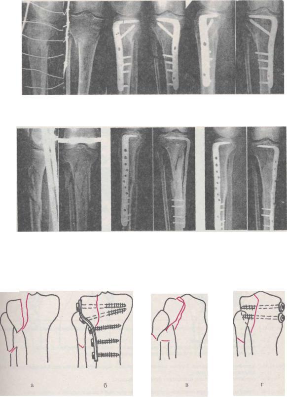 Остеосинтез большеберцовой кости пластиной и штифтом операция по удалению реабилитация когда можно ходить