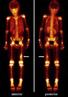 Semioticele cu raze X ale bolilor articulare