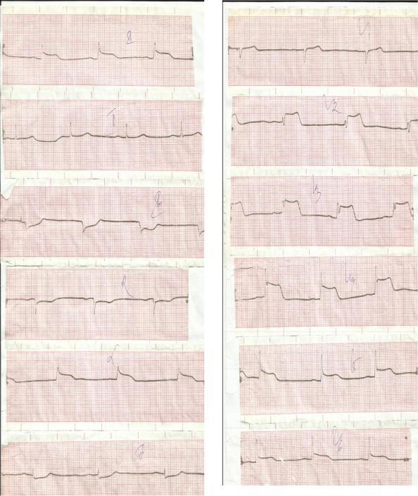 экг при инфаркте миокарда картинки лицо