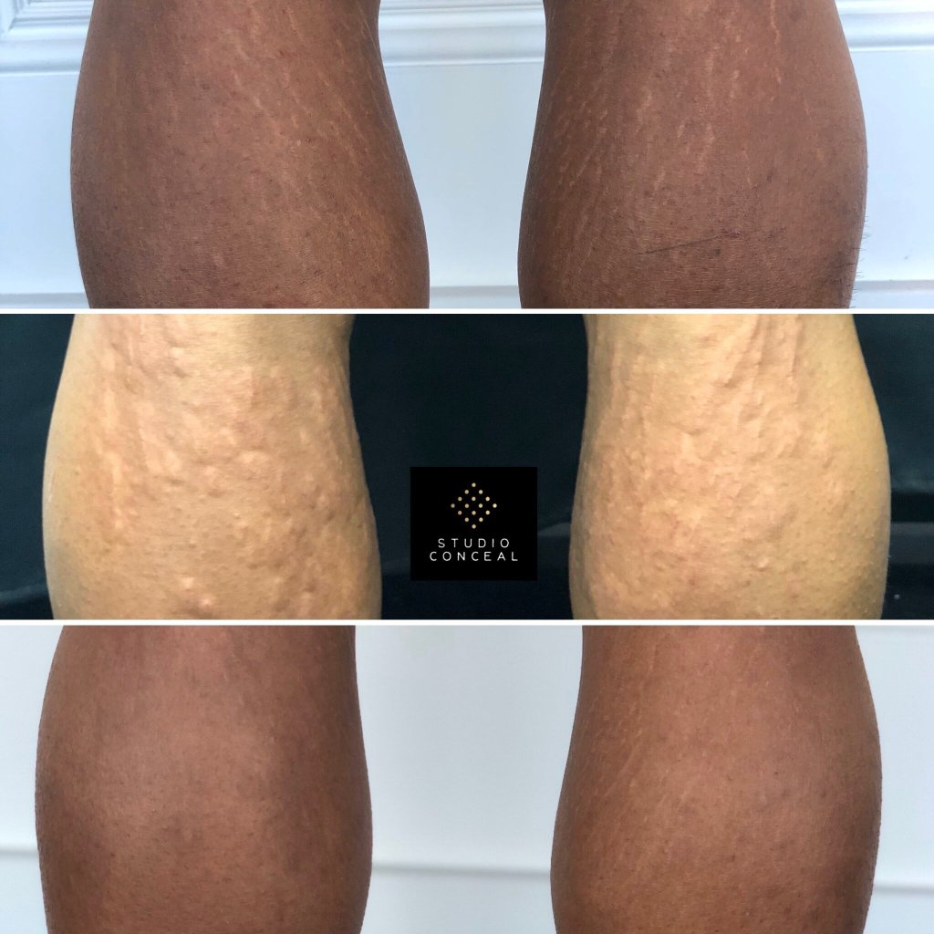 stretch mark coverup tattoo behind the knees before and after