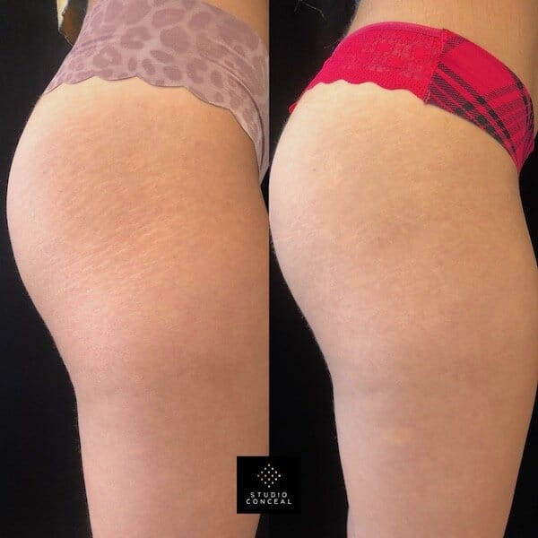 before and after stretch mark tattoo
