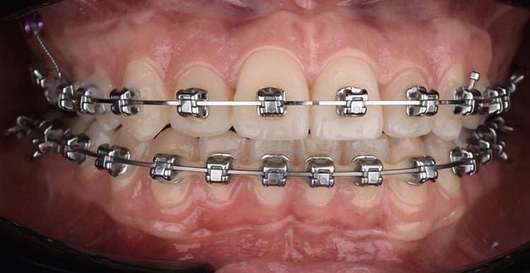 จัดฟันไม่เจ็บขอนแก่น