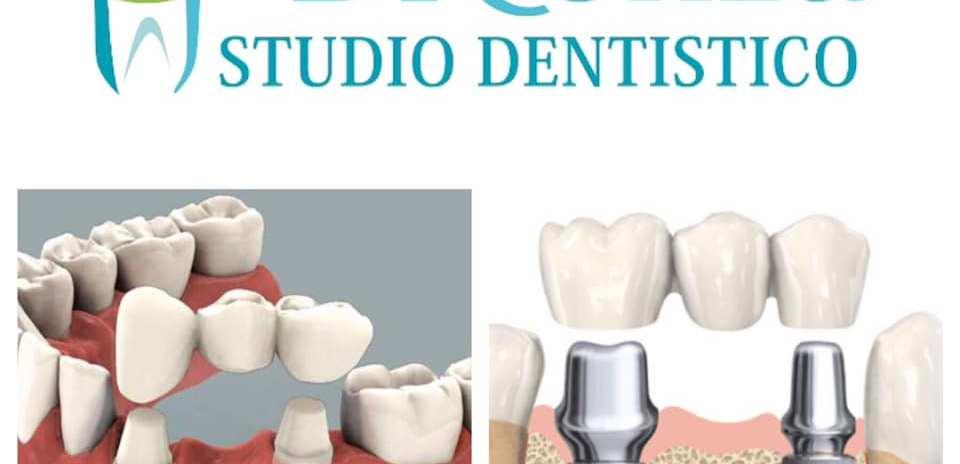 differenza tra ponte su denti naturali e ponte su impianti dentali