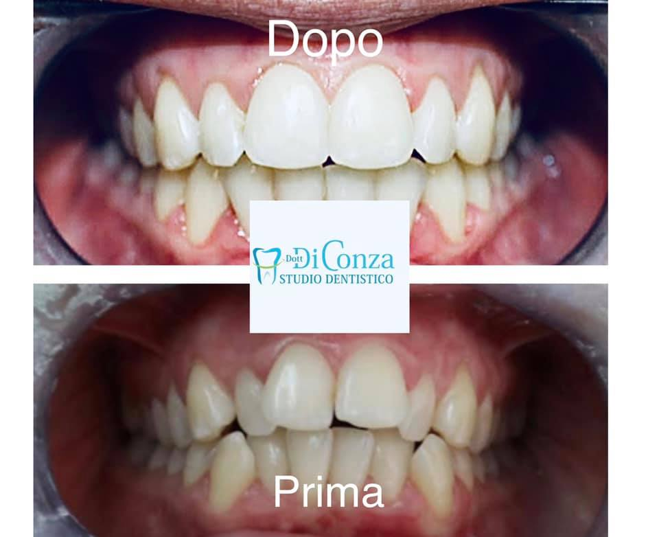 Allineamento dentale a Foggia