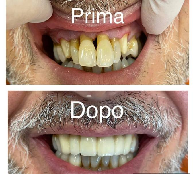 Capsule in ceramica nell'arcata superiore dentale