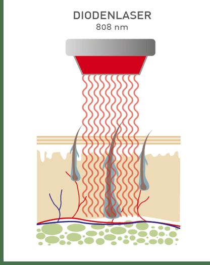 Haarentfernung mit Diodenlaser