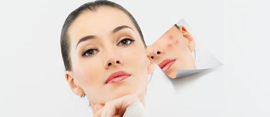 Tratamento Acne