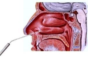 Poliposi nasale Endoscopia nasale Sinusite Ipertrofia Turbinati Decongestione Turbinati Deviazione Settale Patologia Nasale 08