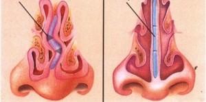 Poliposi nasale Endoscopia nasale Sinusite Ipertrofia Turbinati Decongestione dei Turbinati Deviazione Settale Deviazione Setto Nasale Patologia Nasale 10