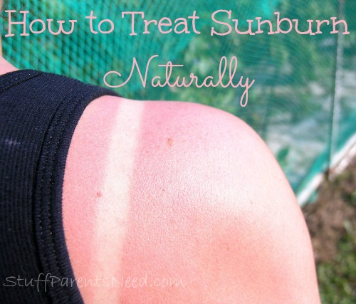 how to treat sunburn naturally