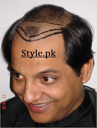 Pakistani Celebrities With Hair Transplant The Hidden