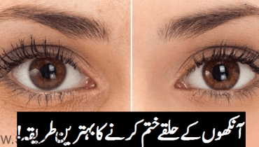 Dark Eye Circles Remedy By Dr Bilquis