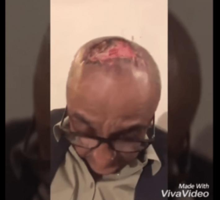 Sajid Hasan Suffers An Unfortunate Hair Transplant Mishap