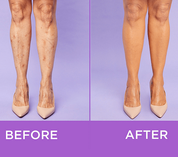 Tarte Shape Tape Body Makeup Is Aimed At Stretch Marks Age Spots Stylecaster