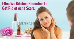 Amazing Home Remedies for Acne Scars