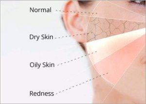 Know-your-skin-type-for-facial