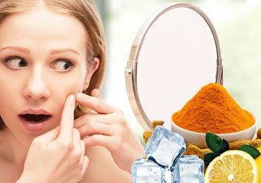 Get Rid of Acne with Home Remedies