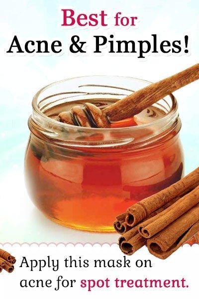 Honey and Cinnamon Homemade Facial Mask for Acne