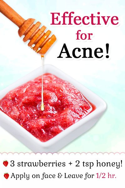Strawberries with Honey Mask for Treating Acne