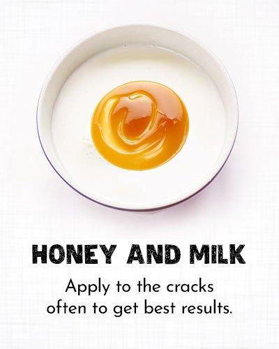Honey and Milk for Dry Cracked Feet