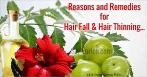 Remedies for Hair Fall and Hair Thinning