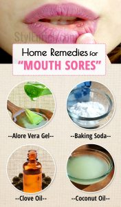 Home-remedies-for-mouth-sores