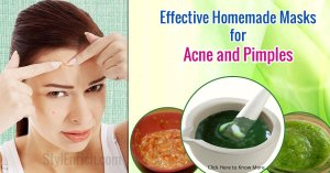 Homemade Masks to Cure Acne And Pimples!