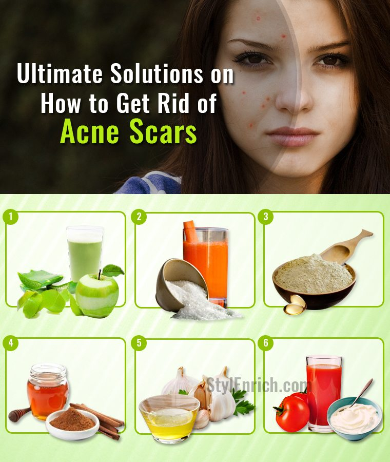 How to Get Rid of Acne Scars.