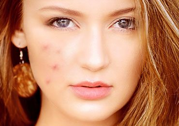 Get Rid of Pimples With Home Remedies