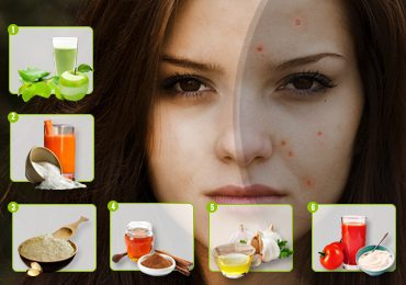 Ultimate Solutions on How to Get Rid of Acne Scars.