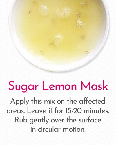 Sugar Lemon Mask to Remove Hair on Face