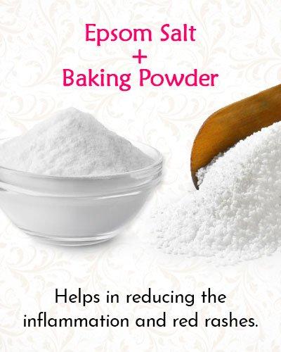 Epsom Salt and Baking Powder For Shingles