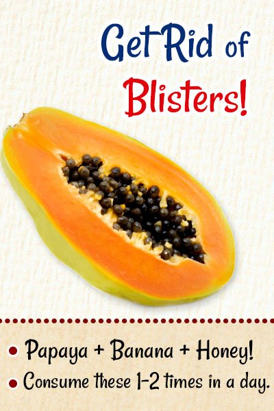 Papaya To Get Rid of Blisters