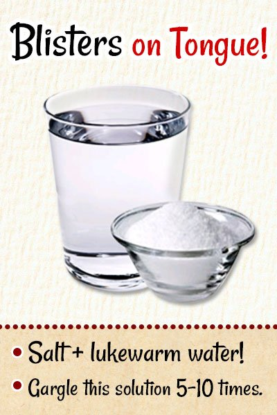 Salt and Water To Get Rid of Blisters