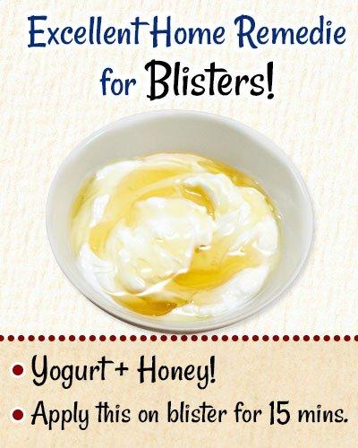 Yogurt To Get Rid of Blisters