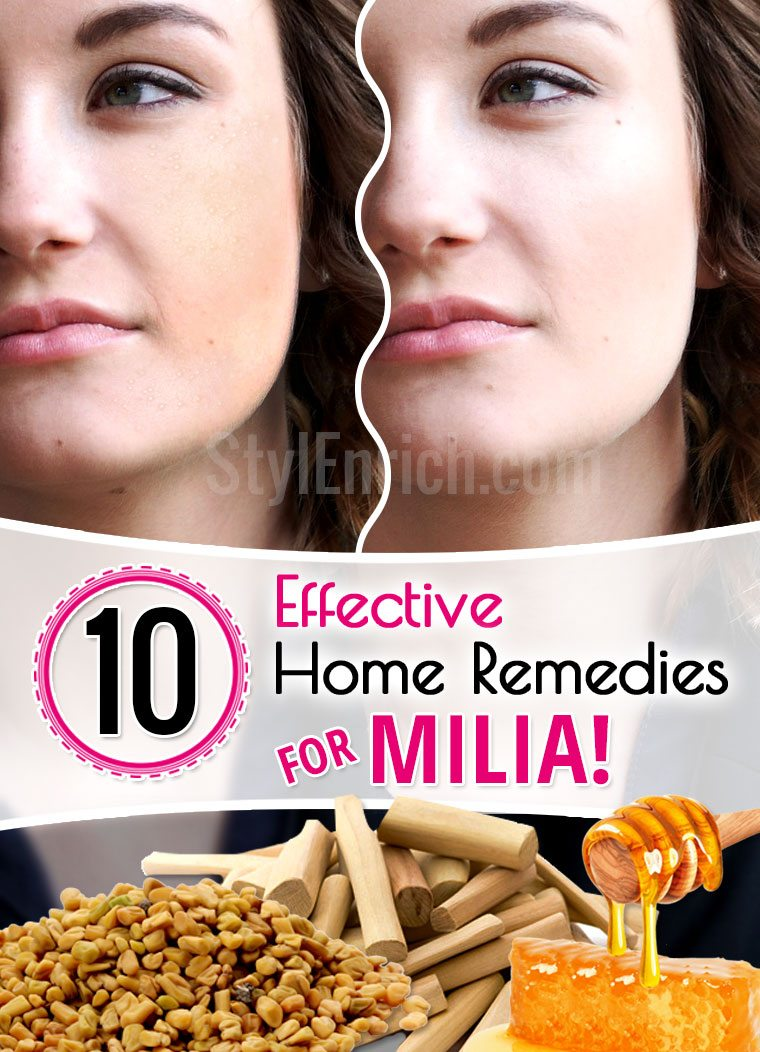 Home remedies for milia