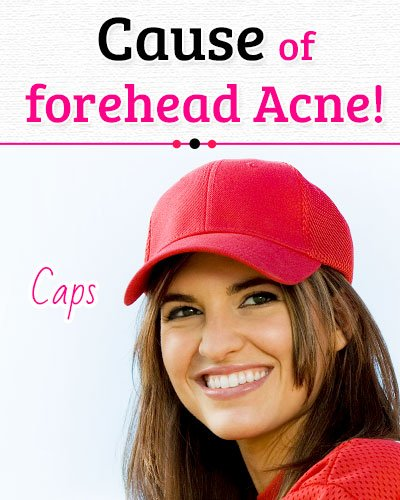 Caps and Helmets Causes of Forehead Acne