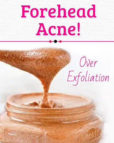 Over Exfoliation Causes of Forehead Acne