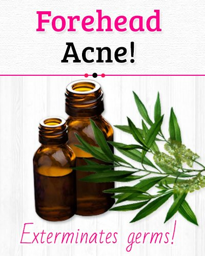Tea-Tree Oil to Get Rid of Forehead Acne