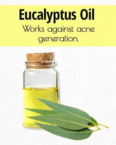 Eucalyptus Oil for Acne Treatment