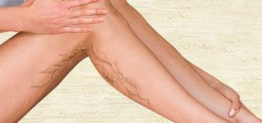 How to get rid of varicose veins on legs naturally