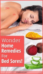 Home Remedies for Bed Sores