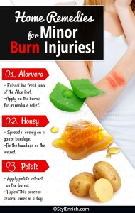 Home Remedies for Minor Burn Injuries