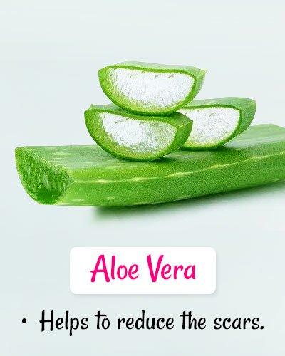 Aloe Vera For Chickenpox