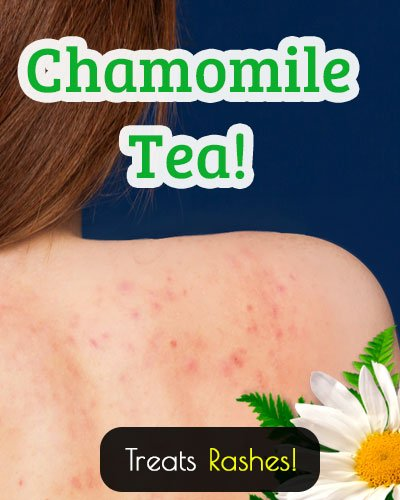 Chamomile Tea Treatment For Rashes And Allergies