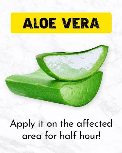 Aloe Vera For Ingrown Hair